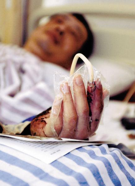 孙先生的受伤手指被切开引流