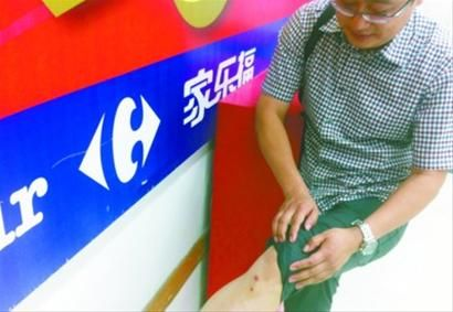 昨日,在家乐福超市文化路店内,夏先生受伤的腿部已经结痂,但想到事发当天汩汩流出的鲜血和粘在裤子上的皮肉,仍然心有余悸。 记者 吕洋 摄