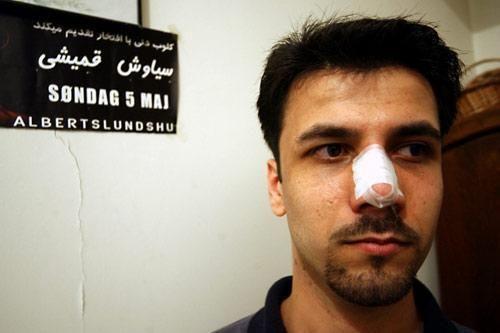 """伊朗是世界""""整鼻之都"""""""