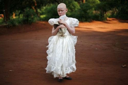 尘土小路上视力受损的马拉维白化病女孩