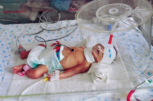 救治中的女婴