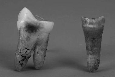 庙后山古人类牙齿化石。本溪市博物馆供图