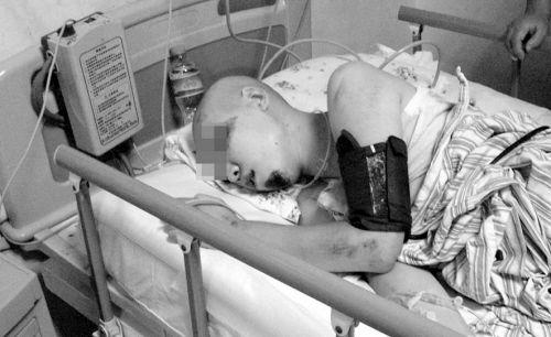幸存的女孩随时可能要做开颅手术