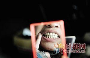 巴南区李家沱,何女士看到美容后的12颗牙齿总是心头不舒服