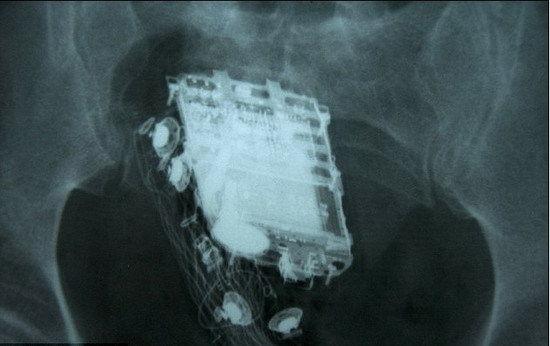 X射线扫描显示,手机被深深地塞进了直肠里。