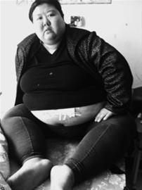 29岁的崔伟杰短短5年内体重从150斤疯长到400多斤,行动困难只能坐在床上。 辽沈晚报记者 徐刚 摄