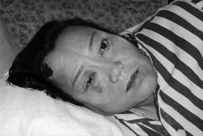 伤者姜桂芝躺在病床上,向辽沈晚报记者讲述当时的情景。