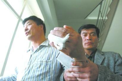 辽沈晚报、北国网记者 杨帆昨日下午,沈阳医学院奉天医院里,高武先生举着被掰断的手,讲述他挨打的经历。 辽沈晚报、北国网记者 王迪 摄