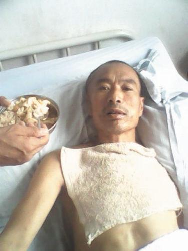 宋成伟的父亲躺在病床上,身体几乎不能动弹。