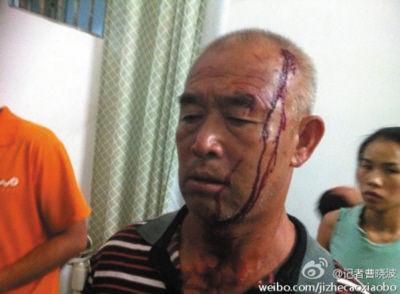 被打伤的死者家属。微博图片