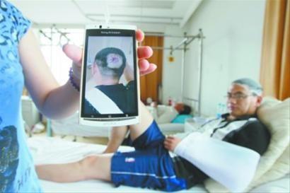 7月17日晚9时许,在沈阳市沈辽路于洪新城楼下的山城辣妹子饭店发生一起高空坠物伤人事件,一个空酒瓶击中一名男子头部、肩部,造成多处骨折。 北国网、辽沈晚报记者 姜旭 摄