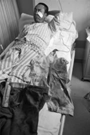 昨日,记者在大连医科大学附属二院见到了受伤的哥戴师傅,他的左脸颊被纱布包裹着,缝了七针。 记者 范佳德 摄