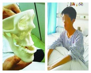 医生将根据1:1的头模确定大壮的手术方案。记者 孙泽锋 摄