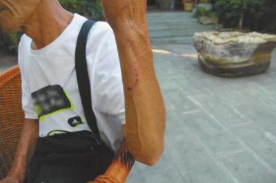 李勇的手臂在误抓过程中受伤。
