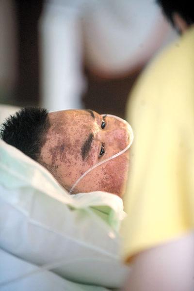 阿飞瘫在病床上,身体多处烧伤。