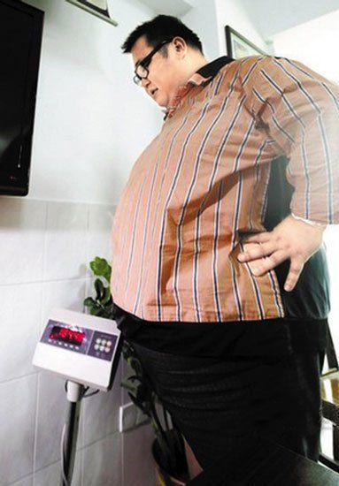 手术前380斤