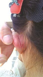 被扯裂耳朵的女童