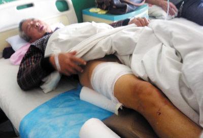 """69岁的""""板凳老爹""""刘大爷刚刚动完手术 受伤的右腿被缝针包扎"""
