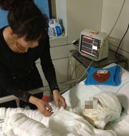 女孩儿正在医院接受治疗