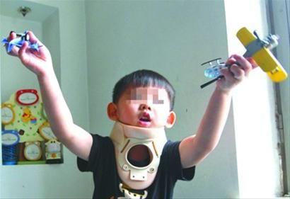 虽然戴上了固定颈托,4岁的小宝(化名)在家还是蹦蹦跳跳。