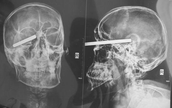 铅笔粗钢柱从男子眼眶下扎进大脑(X光片)。半岛晨报、海力网摄影记者朴峰