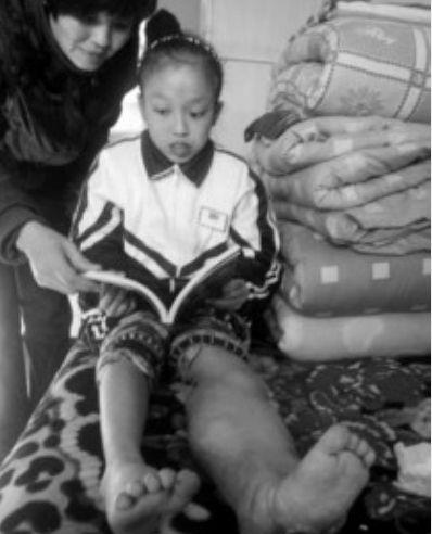 ◆14岁的圆圆在床上和妈妈在一起看书。她希望治好病穿着裙子上大学。