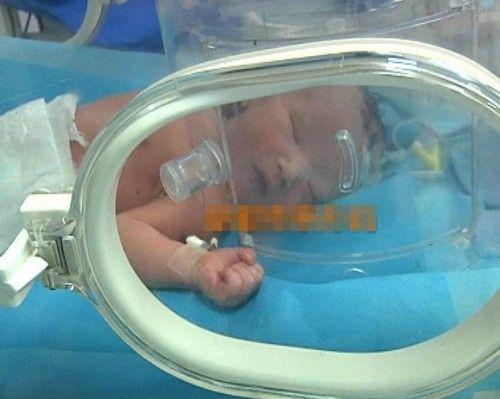 正在接受救治的男婴