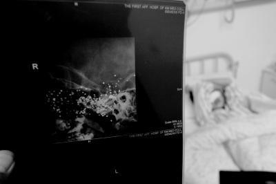 X光片显示,小英的脑中还有大量金属异物。