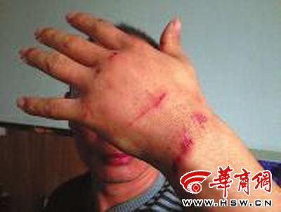 在和窃贼搏斗中,贾某身体多处受伤