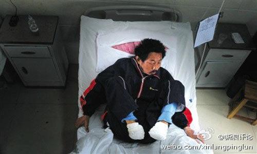 """""""自断双脚""""悲剧,患者刘敦和身边的亲友、邻里对他疏于关心,显然应排在最前头。"""