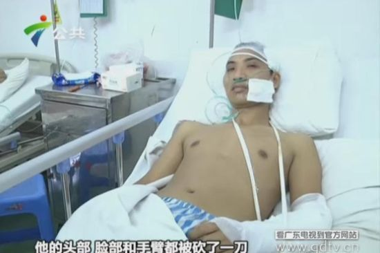 另一名伤者头部、脸部和手臂都被砍了一刀。(视频截图)