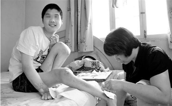 虽然浑身是伤,枫毅依然绽放灿烂微笑