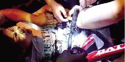13岁男孩东区夜骑,大腿被刹车把手刺入13厘米