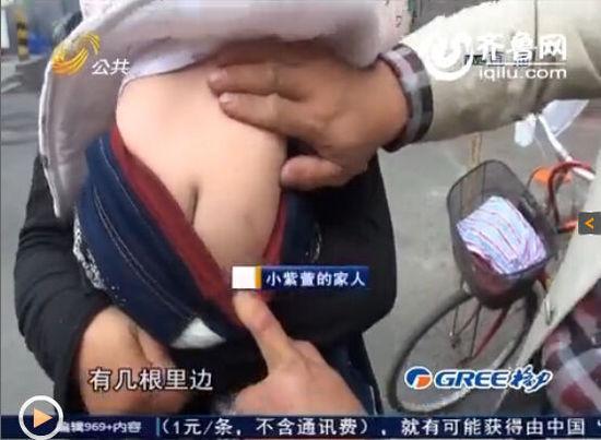 11个月女婴体内被插入16根钢针