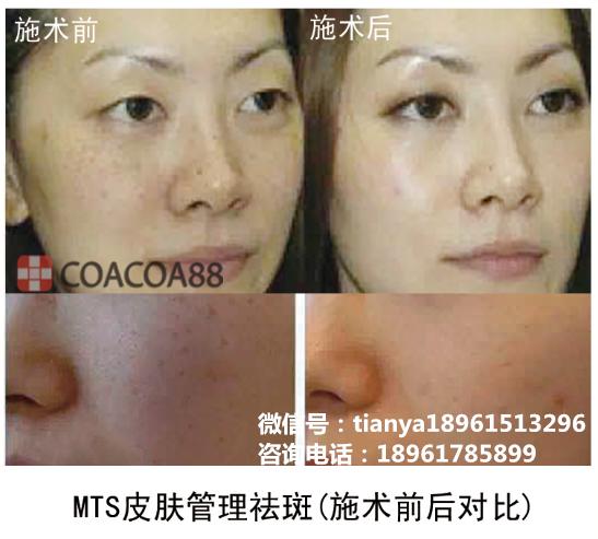 韩国mts皮肤管理教学 包学会