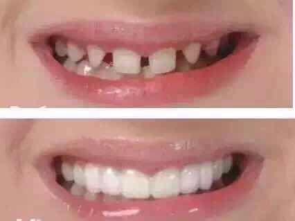研制的最接近天然牙齿成分的纳米